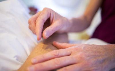 Akupunktur: Naturheilverfahren der TCM